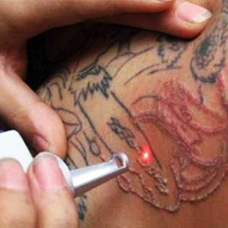 Laser-Tatoo-Removal-in-bangalore